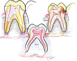 illustrated dental precedures