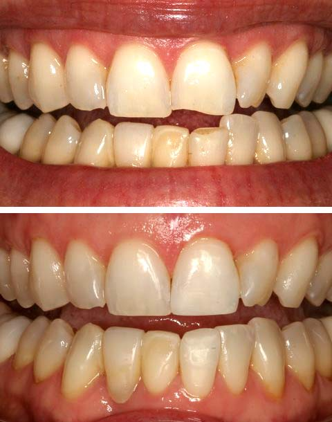 Repair of a small tooth chip