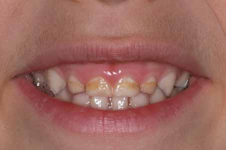 Cavities 2